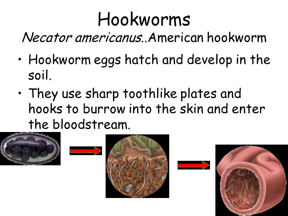 how to get rid of hookworms in soil