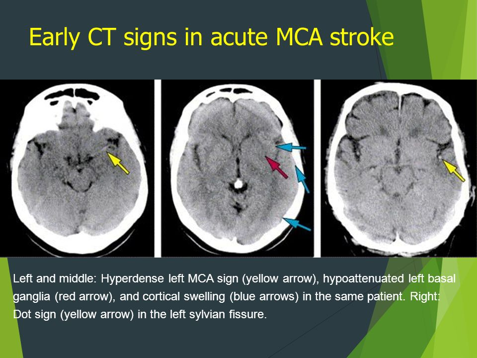 Thrombolysis In Acute Ischemic Stroke  Ppt Video Online. Penyakit Kritikal Signs Of Stroke. Ministry Signs. The Vicious Cycle Signs. Virgo Man Scorpio Woman Signs. Gillette Signs. Shiny Leg Signs. Spontaneous Pneumothorax Signs. Geometry Signs