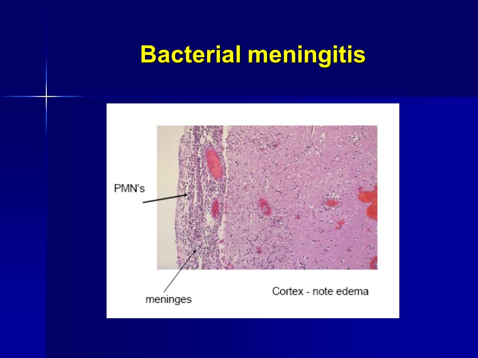 Cytomegalovirus Symptoms CNS INFECTIONS. - ppt ...