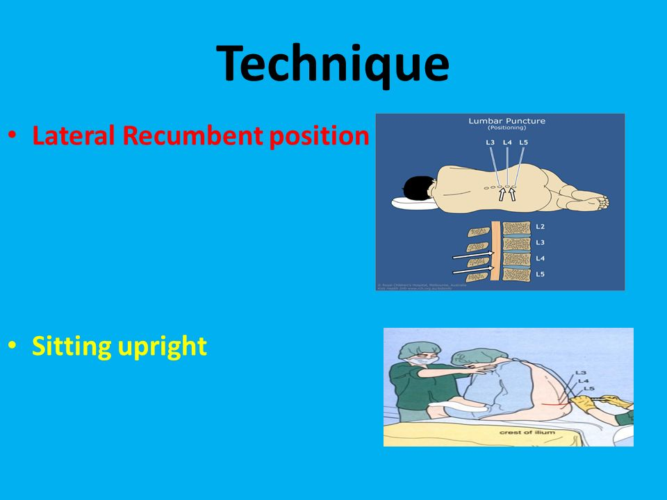 lateral recumbent position - photo #45