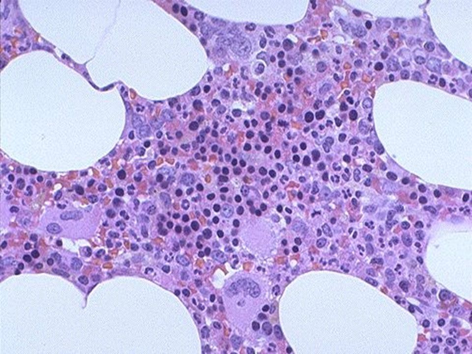 Normal bone marrow biopsy