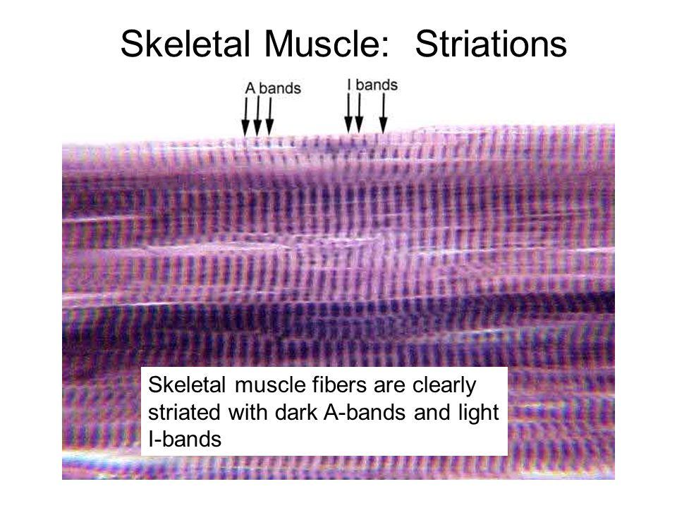 Skeletal Muscle: Striations