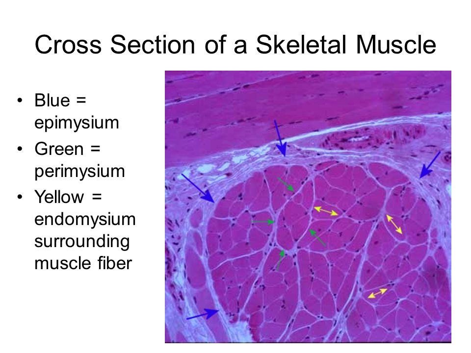 Cross Section of a Skeletal Muscle
