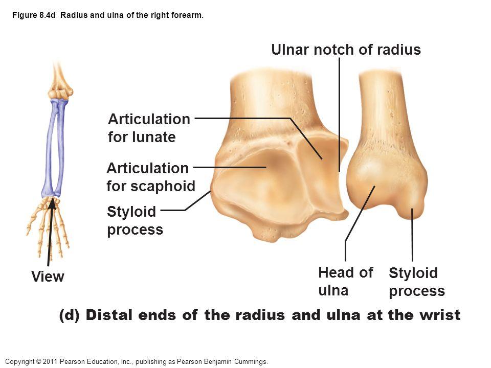 Perfect Ulna And Radius Mold - Human Anatomy Images ...