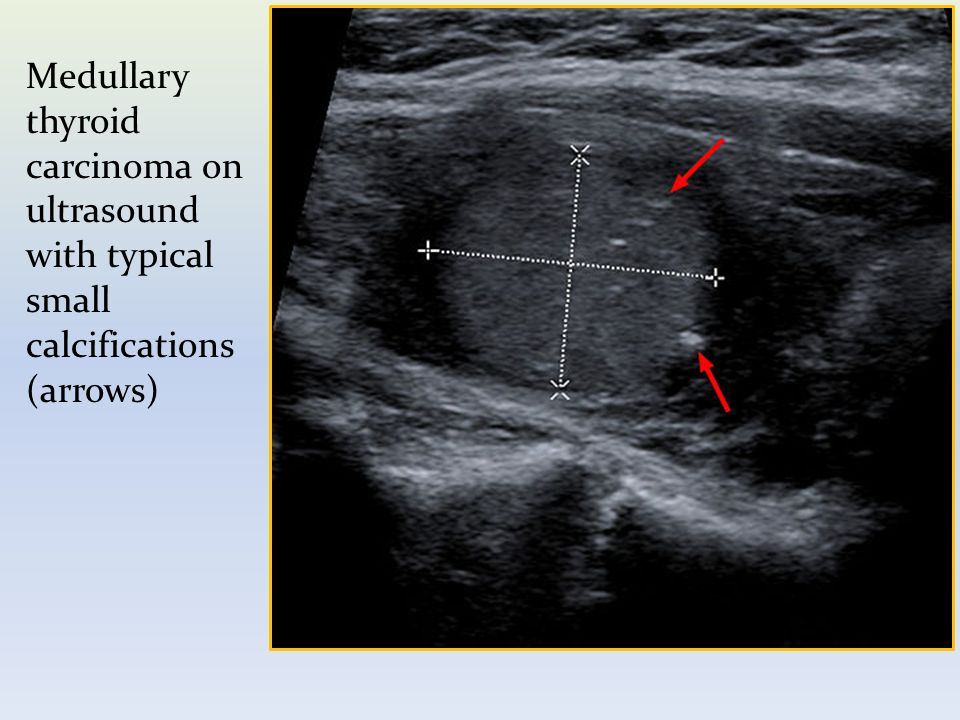 medullary thyroid cancer ppt video online download