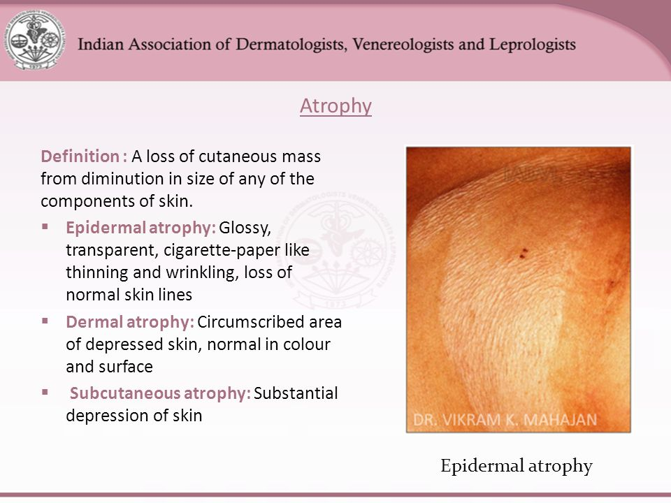 Atrophy Definition : A Loss Of Cutaneous Mass From Diminution In Size Of  Any Of The