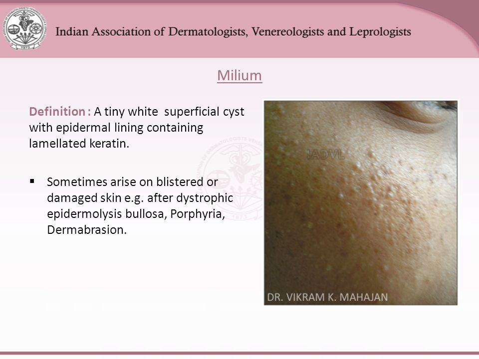 Anatomy Of Skin And Basic Skin Lesions Ppt Video Online