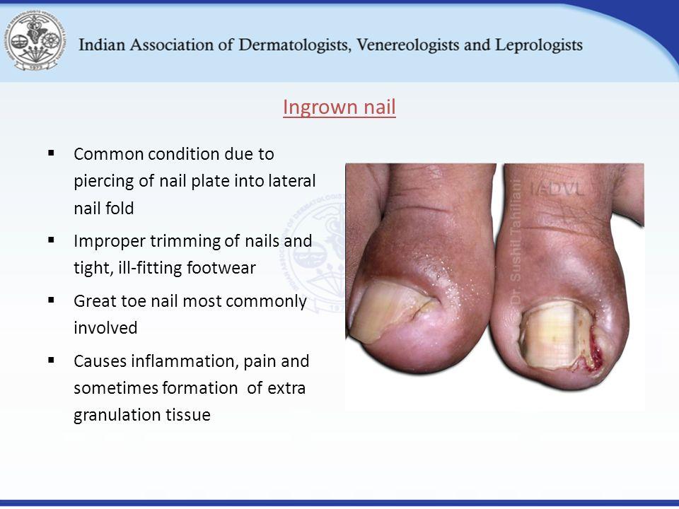 lateral nail fold pain