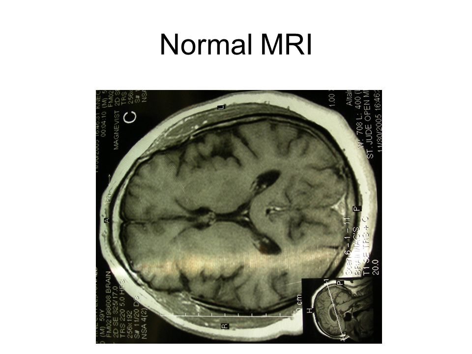 how to read mri brain - Vatoz.atozdevelopment.co