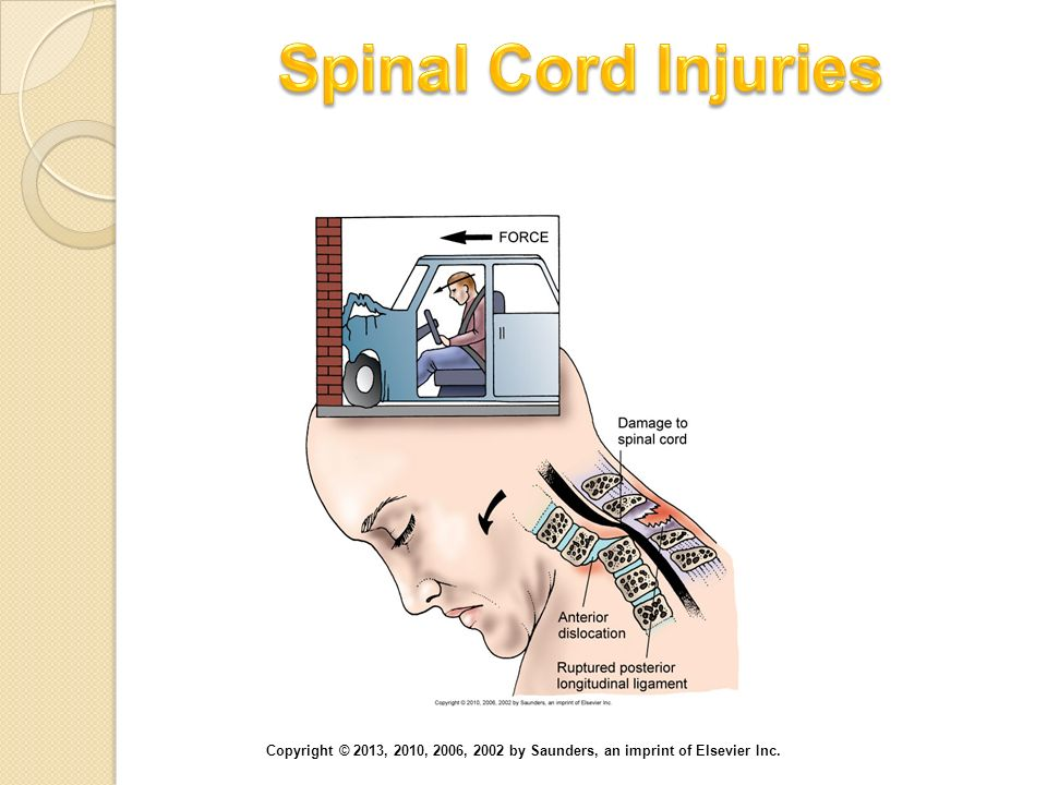 Spinal Cord Injuries Hyperflexion injury of the cervical spine.