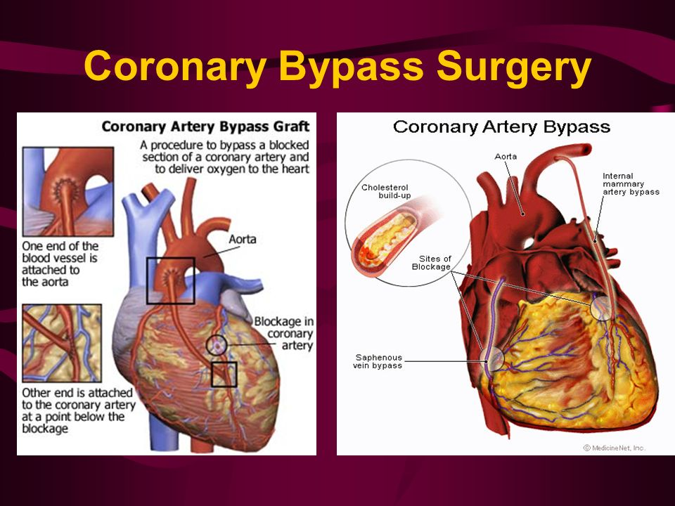history of coronary bypass surgery Abdominal pain after coronary bypass surgery can be mild or considerable, and make the patient think something is wrong pain can be frightening, especially after coronary bypass surgery (also known as cabg.