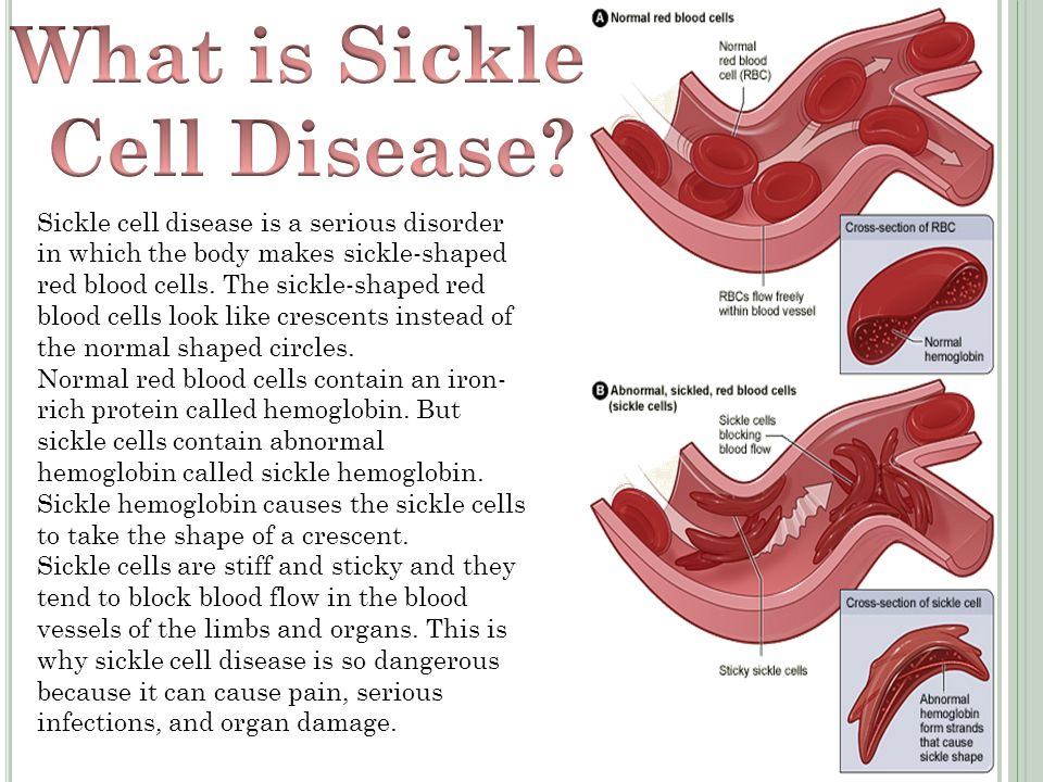 Sickle Cell Disease By Samantha  Ppt Download. Colleges In Charlottesville Va. What Is The Best Bank Account For A College Student. Air Conditioning Repair Raleigh Nc. Mercedes Benz San Mateo Replace My Cell Phone. Online Graduate Math Courses For Teachers. Medicare Supplement Insurance Agents. Outpatient Drug Rehab Centers. Usaa Debt Consolidation Loans