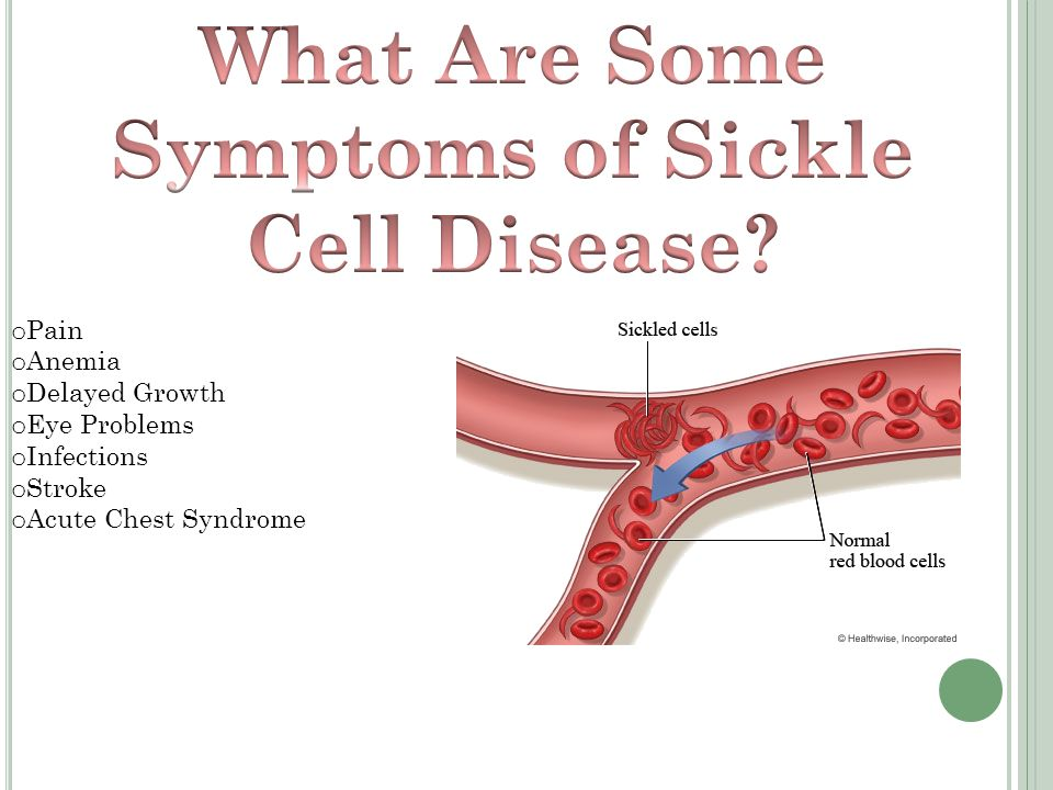 thee causes symptoms and treatment of sickle cell anemia Sickle cell anemia is a disorder in which that affects the normal capacity of red blood cells rbc is vital cell required to supply oxygen and nutrients to the body.