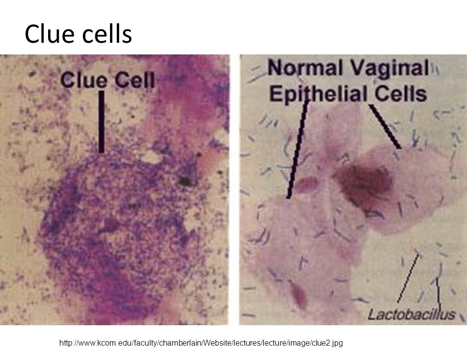 how to tell the difference between candida and bv