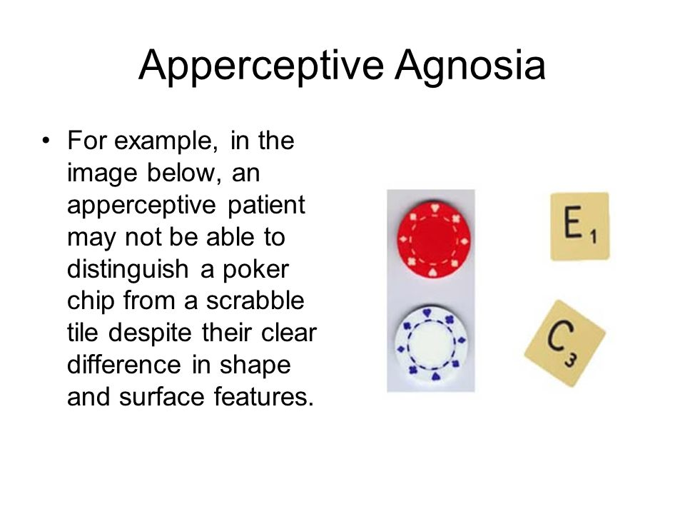 differentiating between apperceptive agnosia and associative agnosia Apperceptive agnosias (also known as visual space agnosias) refer to a  condition  an apperceptive patient may not be able to distinguish a poker chip  from a  although apperceptive agnosia and associative agnosias appear to  anchor the.