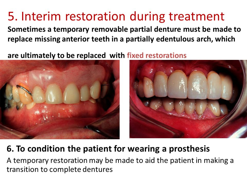principles of a removable partial denture Principles of partial denture design 1 for the tooth-supported removable partial denture or the tooth-supported modification space comes entirely from.