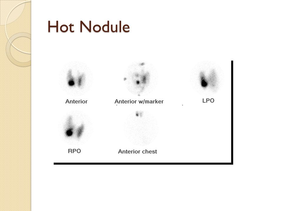 Hot nodule thyroid