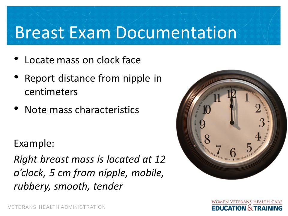 Breast Health. - ppt download