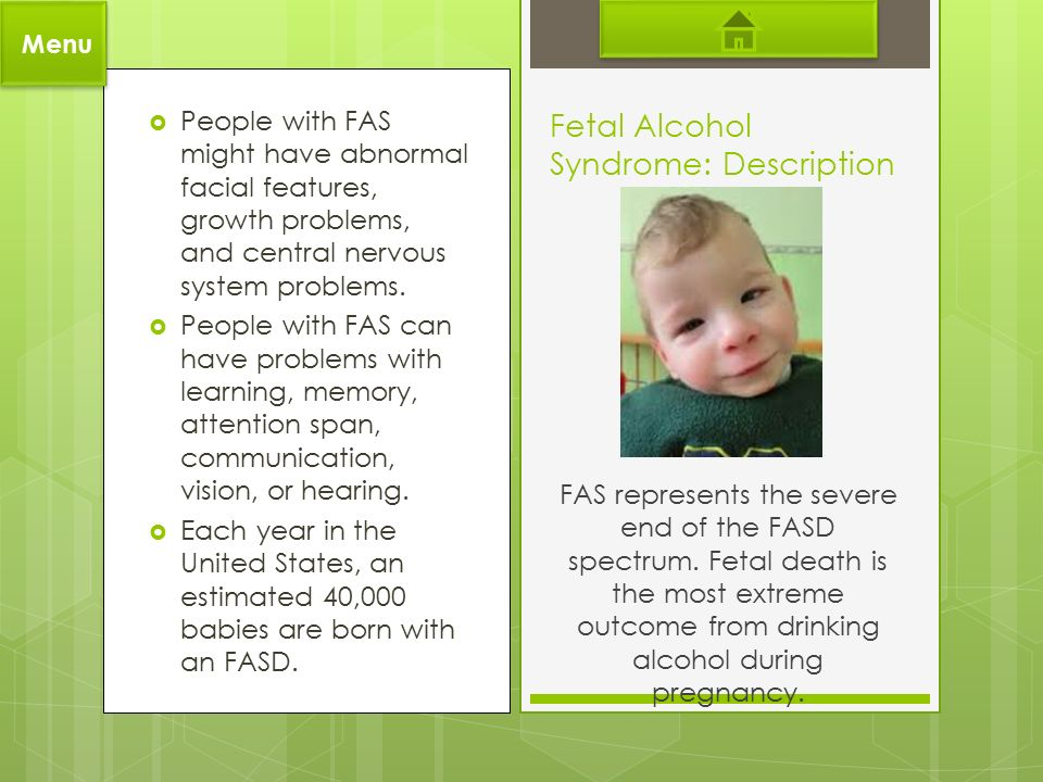 the description of fetal alcohol syndrome Fetal alcohol syndrome: the sum total of the damage done to the child before birth as a result of the mother drinking alcohol during pregnancy fetal alcohol syndrome (fas) always involves brain damage, impaired growth, and head and face abnormalities no amount of alcohol has been proven safe during pregnancy.