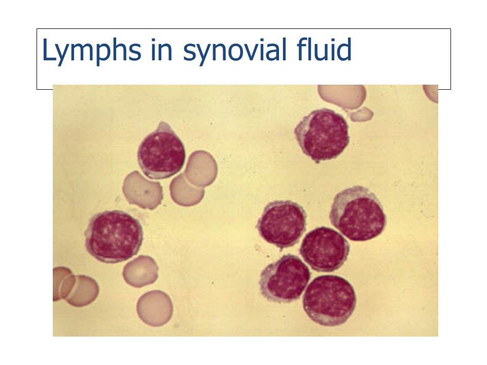 Lymphs in synovial fluid