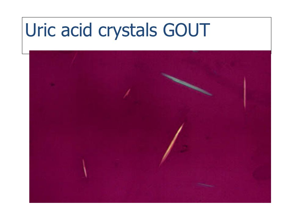 Uric acid crystals GOUT