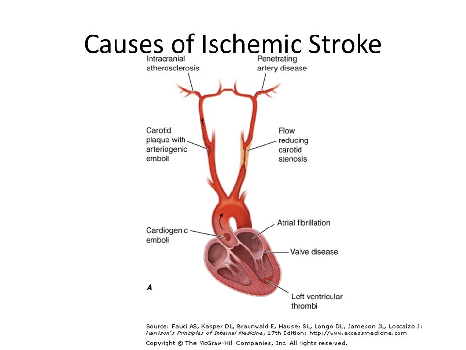 9526401 on Thrombotic And Embolic Stroke