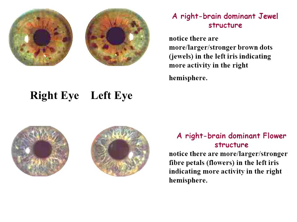 how to know what eye is dominant