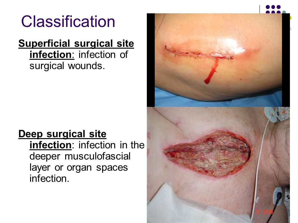 surgical site infection The consequences of infection at the site of surgery can be devastating to the  patient and costly to manage, often requiring readmission to.