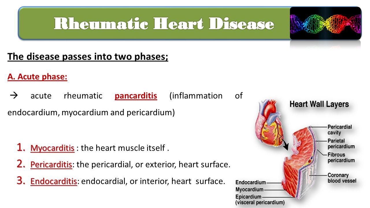 rheumatic heart disease Rheumatic fever is an inflammatory disease that can cause permanent damage to the heart and heart failure.
