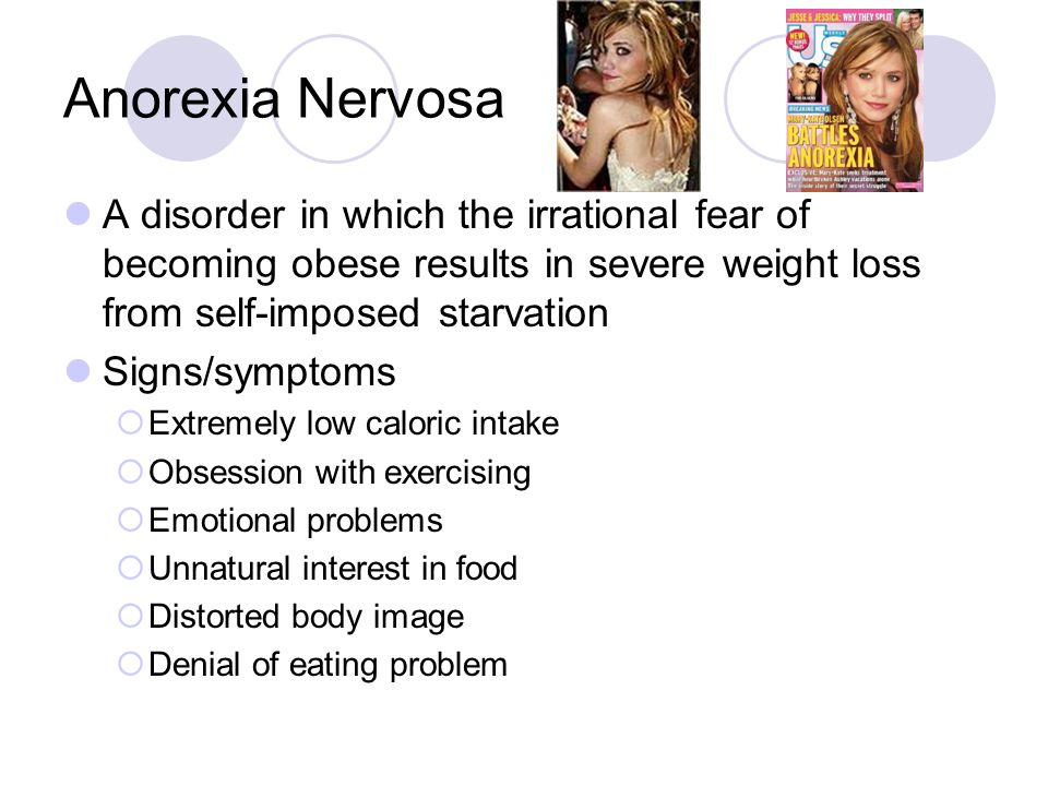Anorexia Nervosa, Obesity and Bone Metabolism