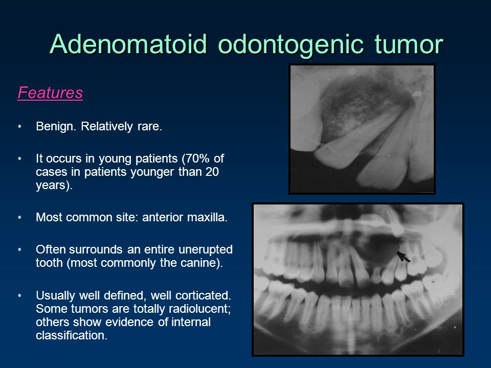 Adenomatoid Odontogenic Tumor Gross Odontogenic Cysts and ...