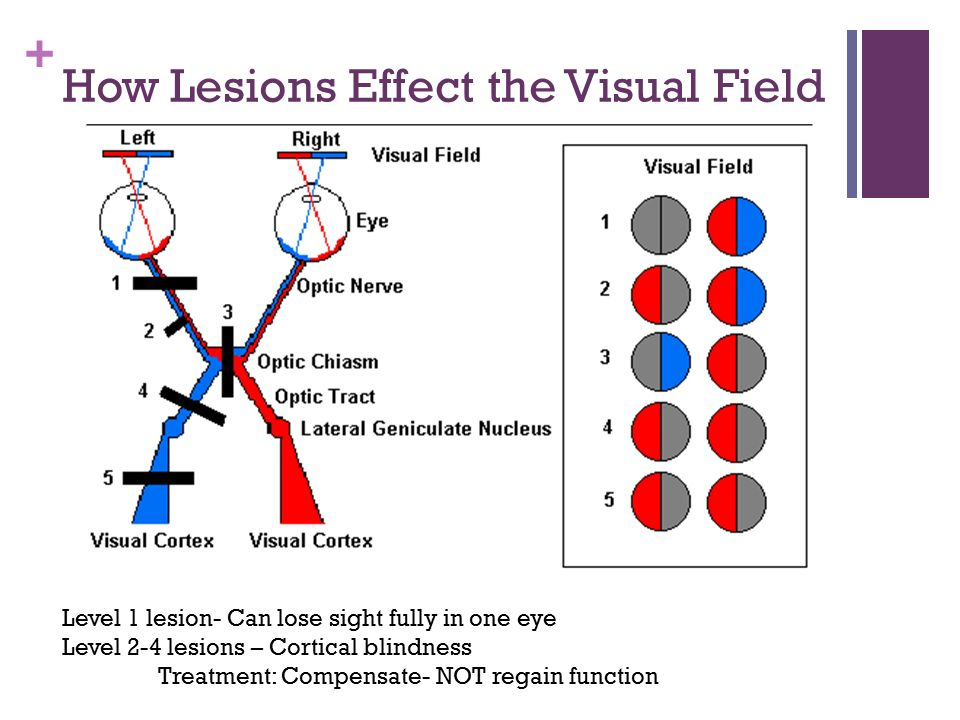 """""""The Basics of Vision Impairments and Functional ..."""