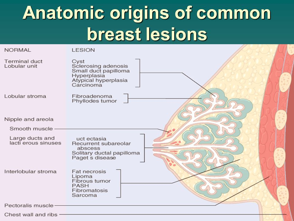 painful breast lesions