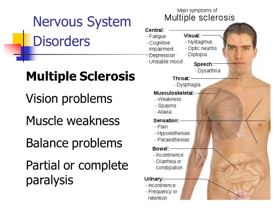 nervous system disorders The nervous system is a complex, sophisticated system that regulates and coordinates body activities it is made up of two major divisions: central nervous system - consisting of the brain and spinal cord peripheral nervous system - consisting of all other neural elements in addition to the brain.