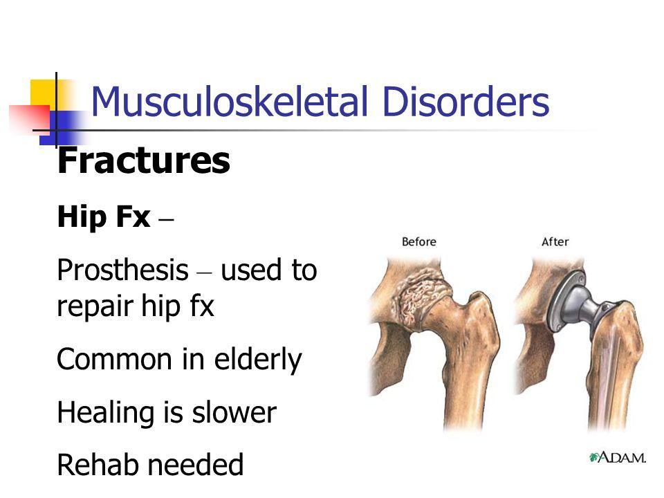 Nervous System Disorders Ppt Video Online Download