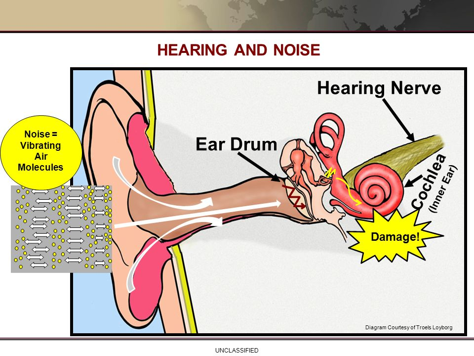 hearing loss prevention for the soldier - ppt video online ... damaged hearing diagram