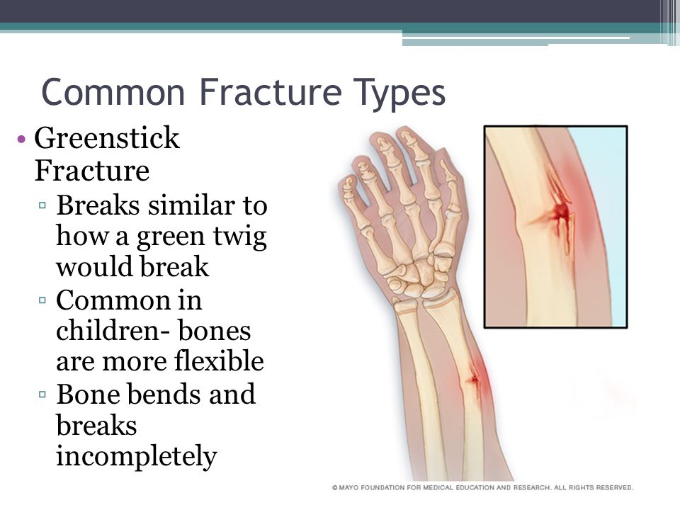 bone fractures anatomy & physiology. - ppt video online download, Human Body