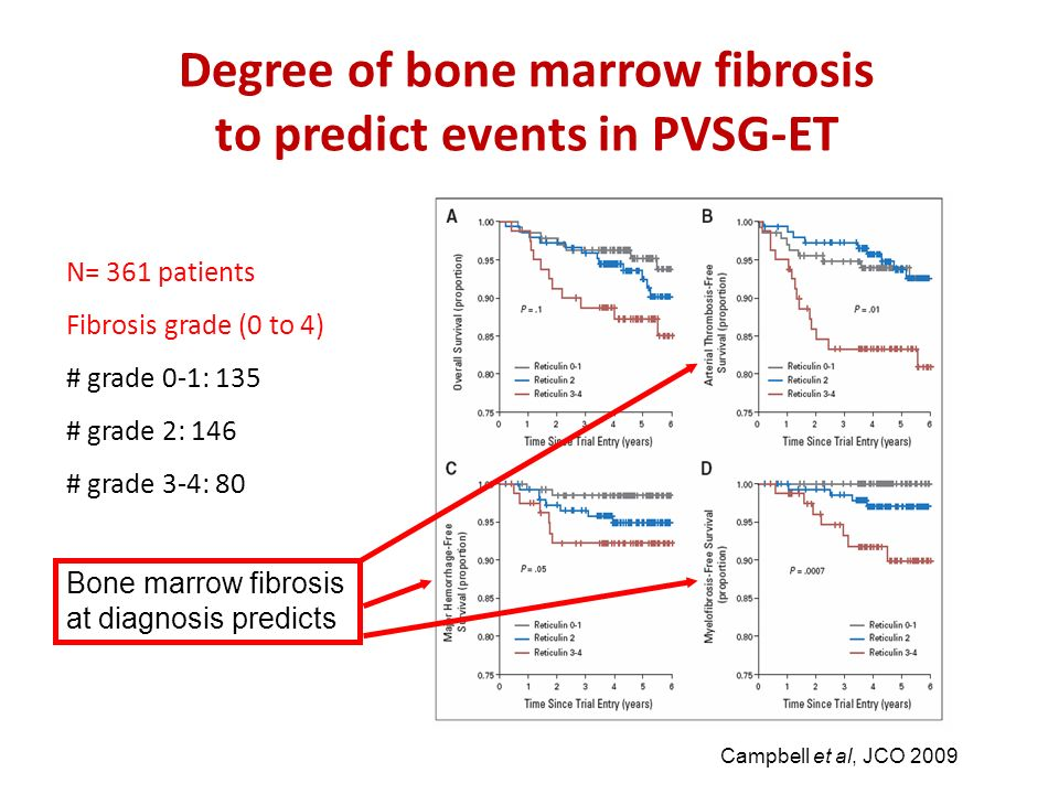 Degree of bone marrow fibrosis to predict events in PVSG-ET