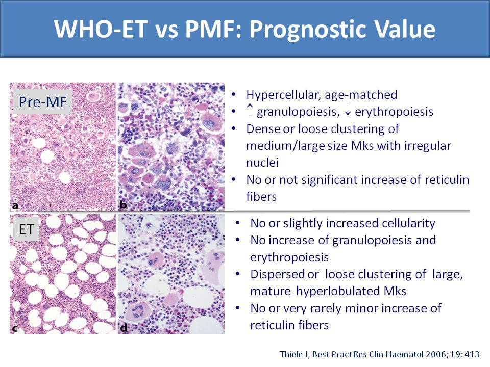 WHO-ET vs PMF: Prognostic Value
