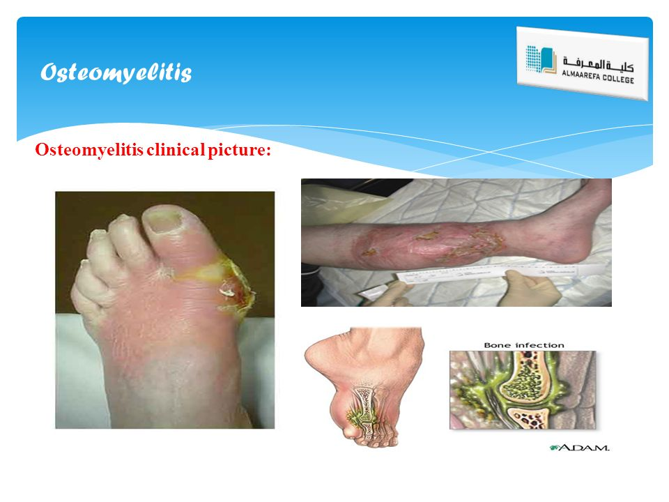 Bone infection osteomyelitis - Maple suyrup diet
