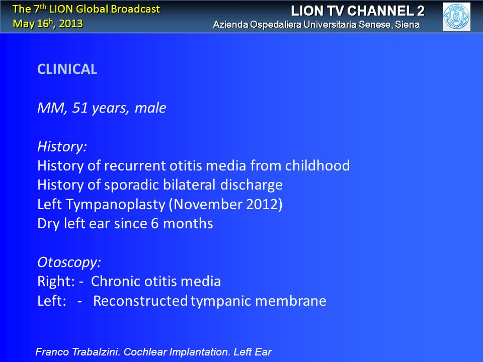 History of recurrent otitis media from childhood