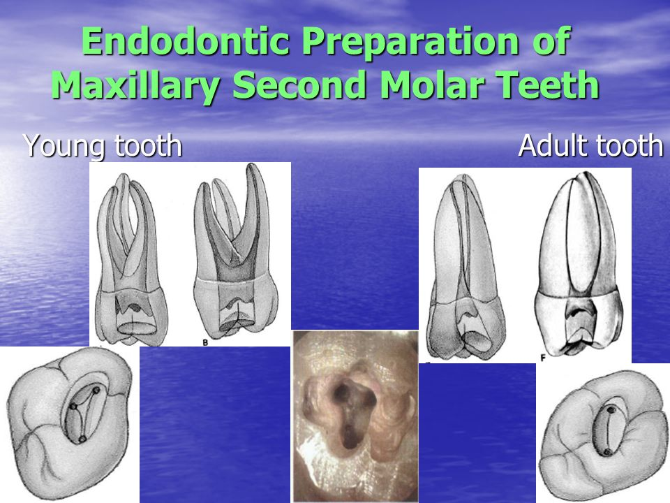 maxillary second molar - Selo.l-ink.co