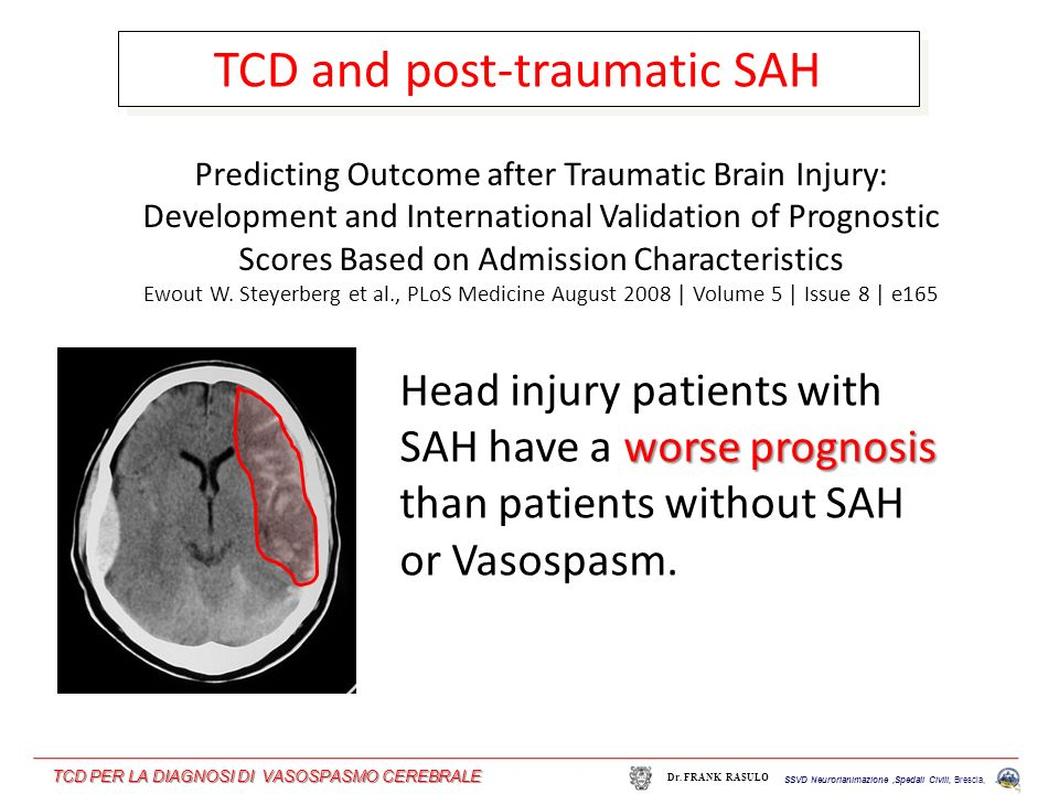 TCD and post-traumatic SAH