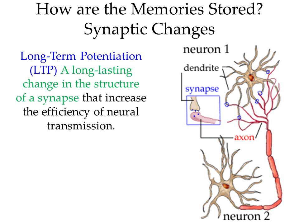 Treatment for left brain stroke picture 1
