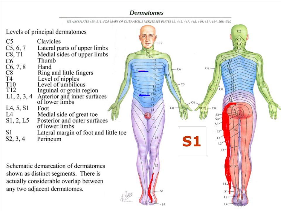 S1 Dermatome Wiring Diagrams