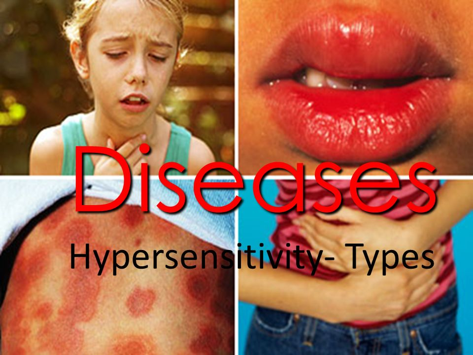 Diseases Hypersensitivity- Types