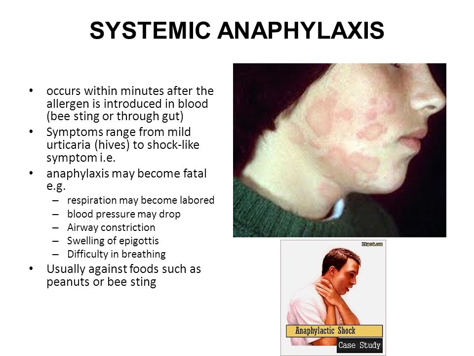 SYSTEMIC ANAPHYLAXIS occurs within minutes after the allergen is introduced in blood (bee sting or through gut)
