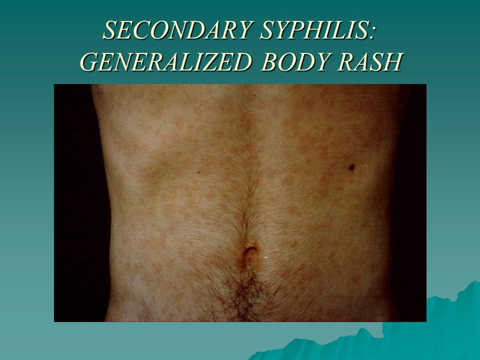 Primary Syphilis Rash Etiology, patho...