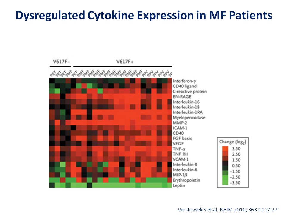 Dysregulated Cytokine Expression in MF Patients