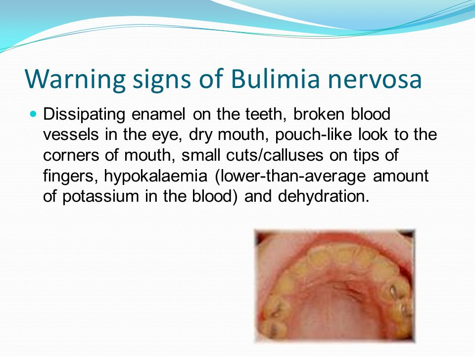 what are the signs and symptoms of bulimia nervosa